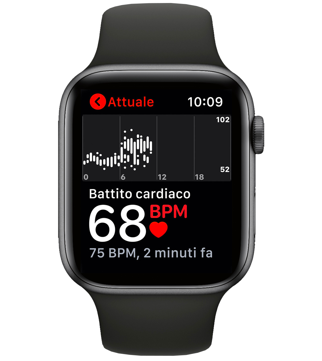ECG Apple Watch immagine elettriocardiogramma